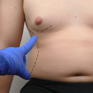 Tummy Tuck Drainless